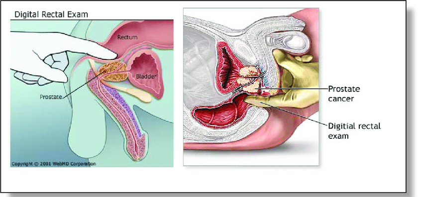 rektálne vyšetrenie prostaty